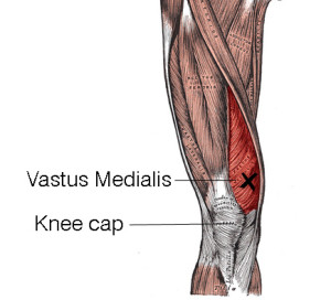 A strained medial quad (Vastus medialis) can pull on the inside of your knee, and it can hurt a lot. The trick is to get it to relax.