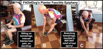 sore feet; FitOldDog's plantar fasciitis epiphany.