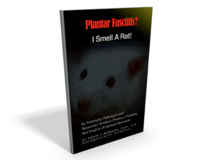 plantar fasciitis research