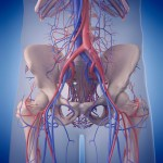 Iliac Artery Stent Thoughts On The Bike
