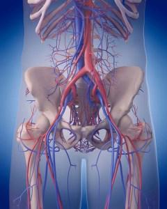 Iliac Artery Stent