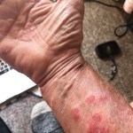 Ironman Training Psoriasis Funk? Change up and Suck It Up!