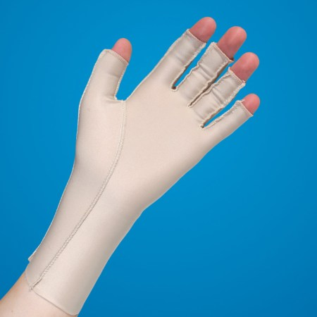 oedema glove for post trauma or stroke
