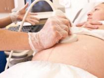 Premiera medicala in Europa: Doi medici romani au operat un bebelus nenascut