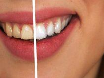 Cum se elimina tartrul de pe dinti la clinica dentara Elveto-dent?
