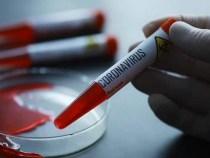 Japonia: Automate cu teste PCR, amplasate pe străzile din Tokyo