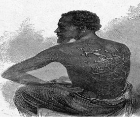 Enslaved man cuts off hand during slavery