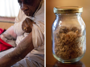 Rollins Edwards, who lives in Summerville, S.C., shows one of his many scars from exposure to mustard gas in World War II military experiments. More than 70 years after the exposure, his skin still falls off in flakes. For years, he carried around a jar full of the flakes to try to convince people of what happened to him. Source: AMELIA PHILLIPS HALE FOR NPR