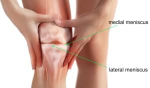 meniscus tear knee
