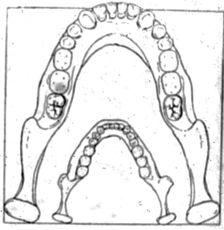 Abb. 3 Weinerts Rekonstruktion des Kiefers vom Quangasi-Riesen im Vergleich zu dem Unterkiefer eines heutigen Menschen.