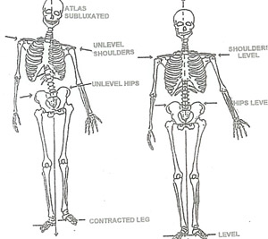 Diagram Of Spine Chiropractic Chiropractic Spinal Nerves