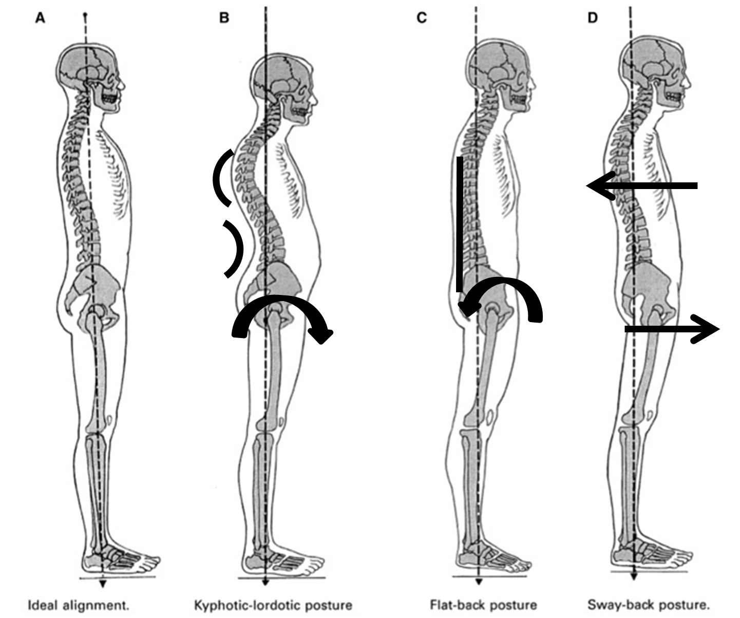 One Ideal Spinal Posture Does Not Exist