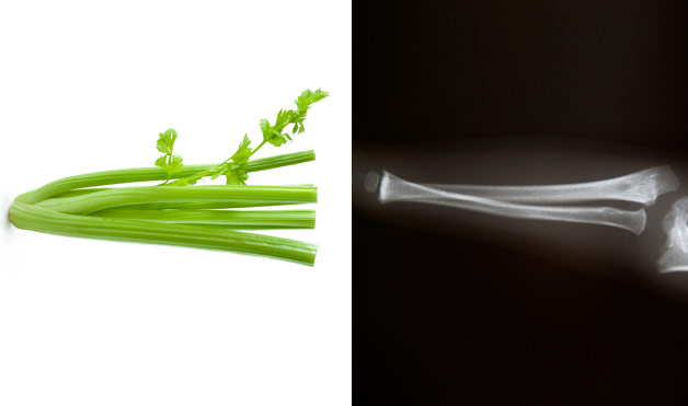 03-Celery-BoneFoods-That-Look-Like-Body-Parts-1