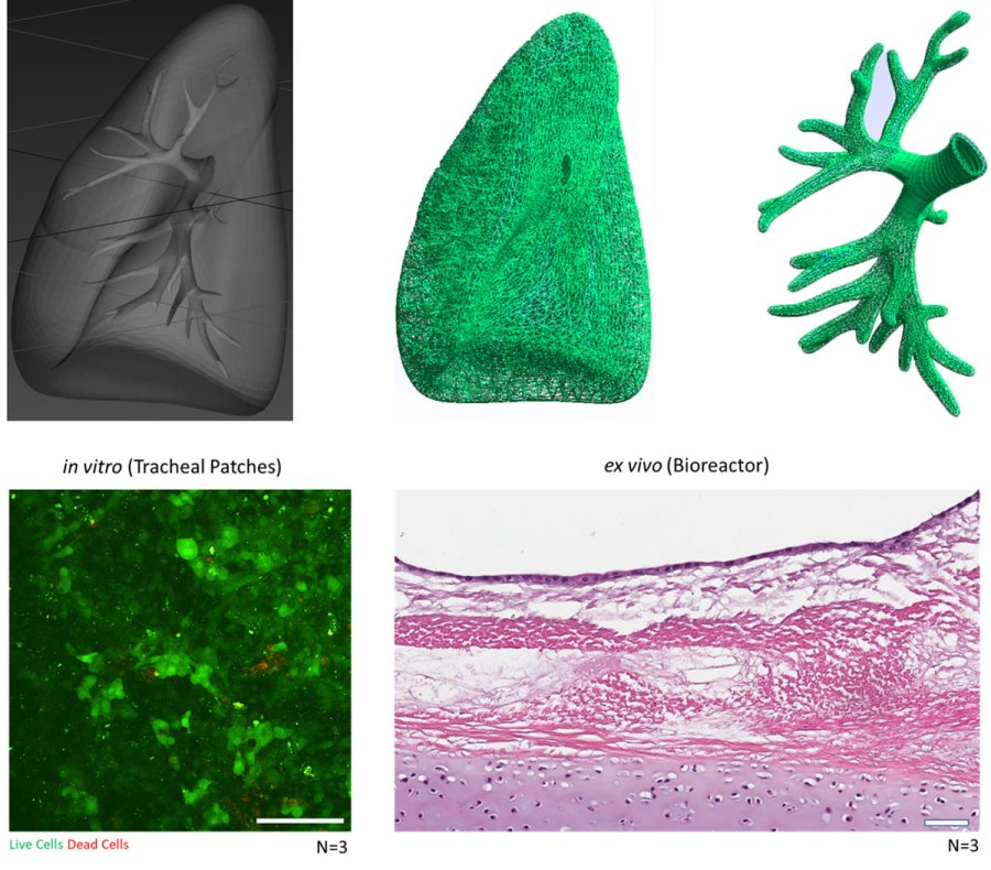 RC/DC of Tracheal and Lung Scaffolds