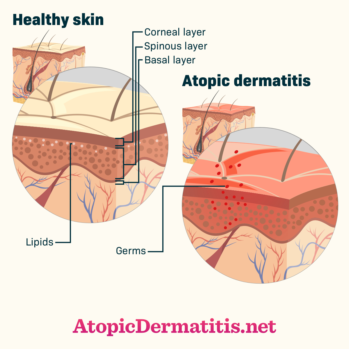 hight resolution of atopic dermatitis