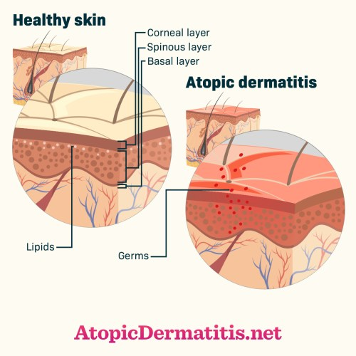 small resolution of atopic dermatitis