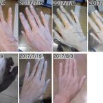 アレルナイトプラス アトピー 湿疹 飲み始めて1ヶ月