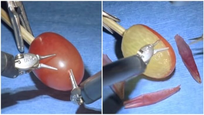 They Did Surgery On A Grape Meme