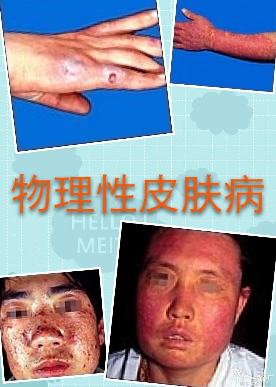 【圖】皮膚病性病專科 - 意大利米蘭華語醫生/藥店/保健 - 華人街分類廣告
