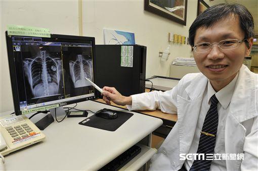 新型無導線心律調節器 降低併發癥風險   生活   三立新聞網 SETN.COM