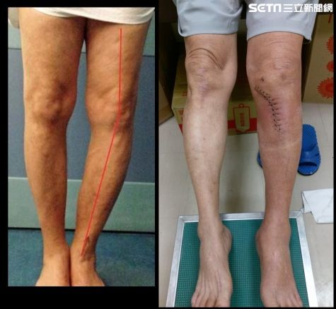 膝關節退化O形腿 HTO截骨矯正手術助恢復生活 | 生活 | 三立新聞網 SETN.COM