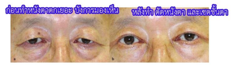 หนังตาตกจนบังการมองเห็น ทำผ่าตัดตัดหนังตา และเซตชั้นตา