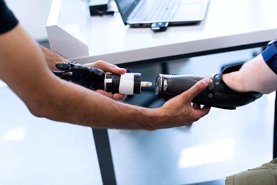 prosthetics engineer arm