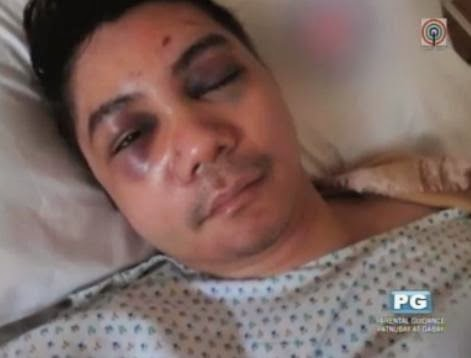Vhong Navarro Attacked and Beaten