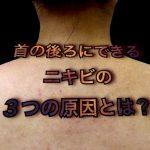 首の後ろや背中「うなじ」にできるニキビの3つの原因とは?
