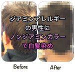 ジアミンアレルギーの男性にノンジアミンカラーで白髪染め《大阪千林守口》