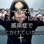 歌手オジーオズボーン、マニキュアによる感染症で死にかけていたww