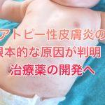 アトピー性皮膚炎の根本的な原因が判明!治療薬の開発へ