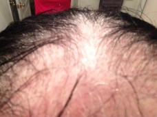 My bald scalp back view for Mondays blog