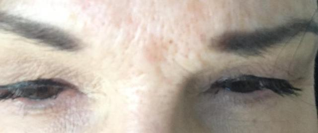 swollen puffy eyes