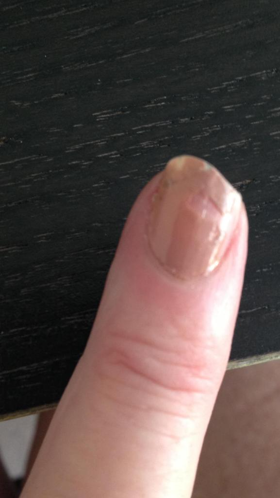Broken Nail