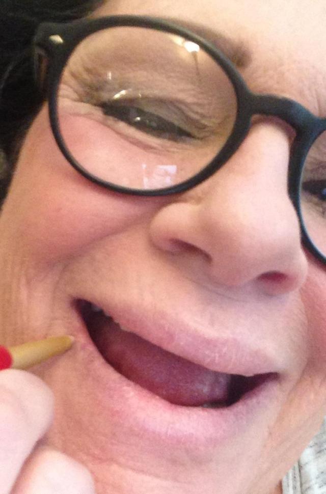 Mally LipFence