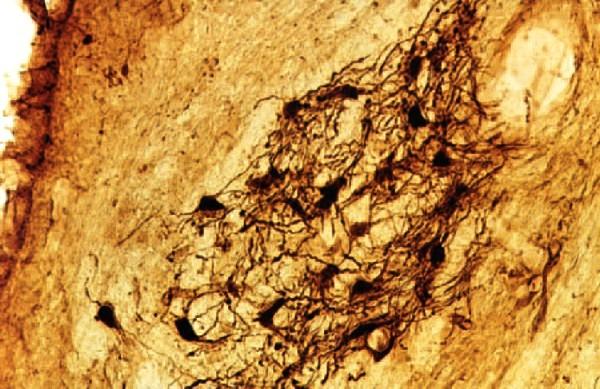 área de células pulpo