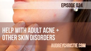 Help with Adult Acne + Other Skin Disorders