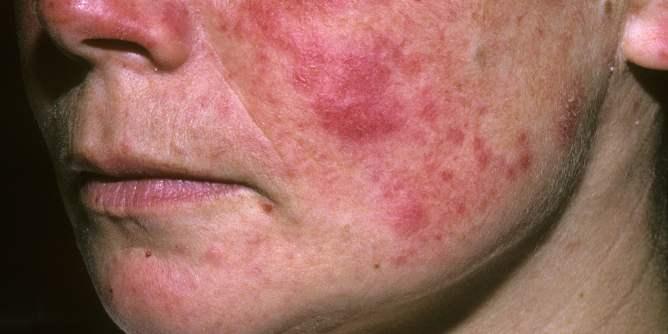 lúpus uma doença autoimune