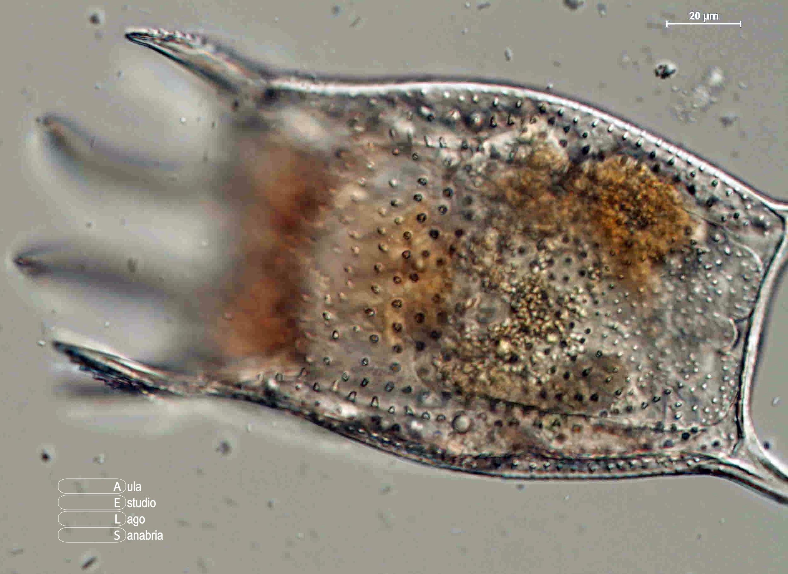 Microfotografía rotífero Keratella serrulata
