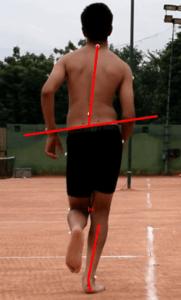 Rehab for Shin Splints_Medial Collapser