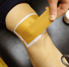 mcconell_taping_Patellofemoral Pain in Runners