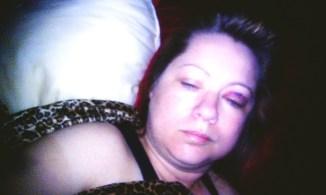 Victim Bruising to face after assault