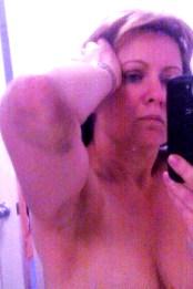 Victim Bruising to elbow days after assault