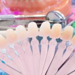 Nine reasons why people get dental veneers