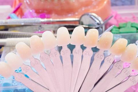 Nine reasons why people get dental veneers