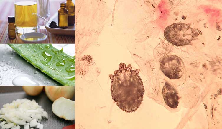 Home Remedies For Scabies Authority Remedies
