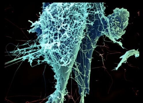 String-like Ebola virus particles are shedding from an infected cell in this electron micrograph. Credit: NIAID