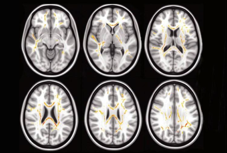 Fuera de la pista: A más problemas tiene un niño para realizar las tareas diarias, más atípica es la estructura de sus fibras nerviosas en ciertas áreas del cerebro (rojo, amarillo)