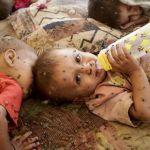 Desnutrición infantil y discapacidad, un peligroso vínculo